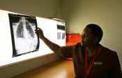 SA's nursing shortage is placing major strain on the medical industry